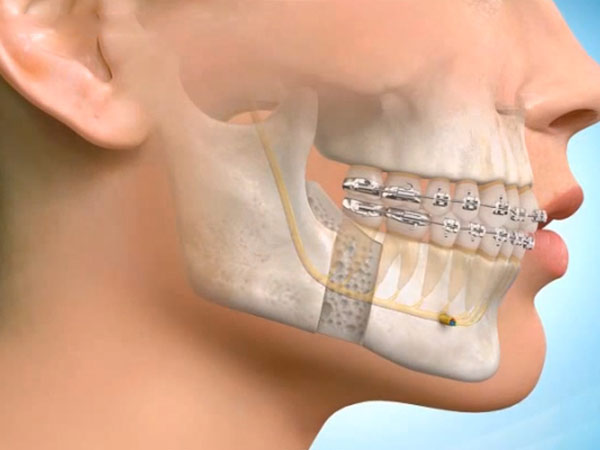 MOUTH TEETH AND CHIN SURGERY